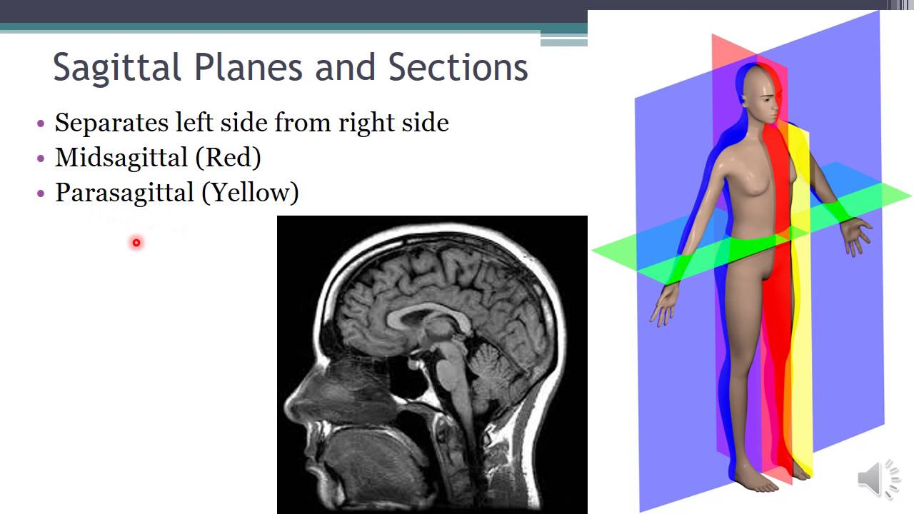 Language Of Anatomy Video 2 Body Planes And Sections Youtube