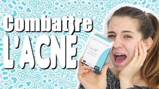 🙅🏼 | Traitement miracle contre l'acné???