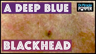 A blue-black, sticky blackhead extracted