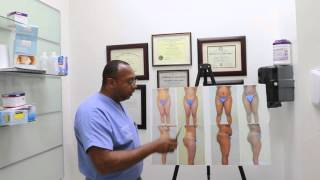 Tummy tuck vs Liposuction Miami Dr Wendell Perry
