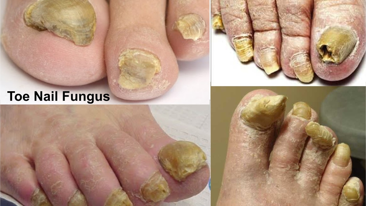 How To Treat or Cure Toenail Fungus With VICKS VAPORUB - YouTube