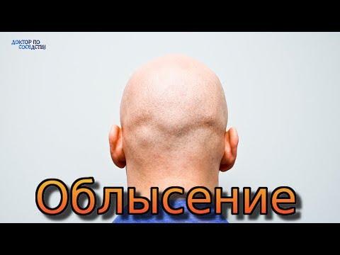 видео: ЛЕЧЕНИЕ ОБЛЫСЕНИЯ / THE TREATMENT OF ALOPECIA