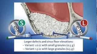 Medical device animation: Geistlich Bio-Oss Pen® (GEISTLICH) - 3D Animation Medizin