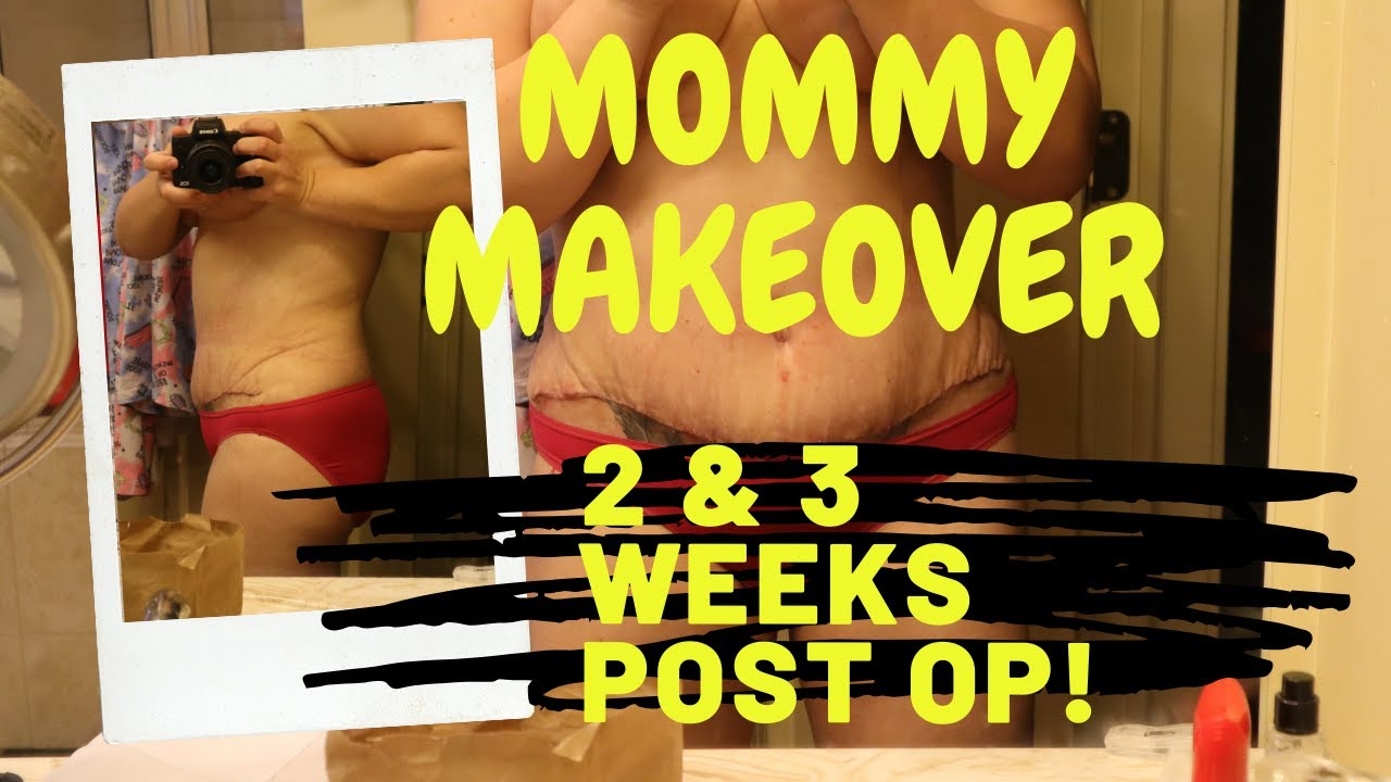 Mommy Makeover 1Wk Post Op - YouTube