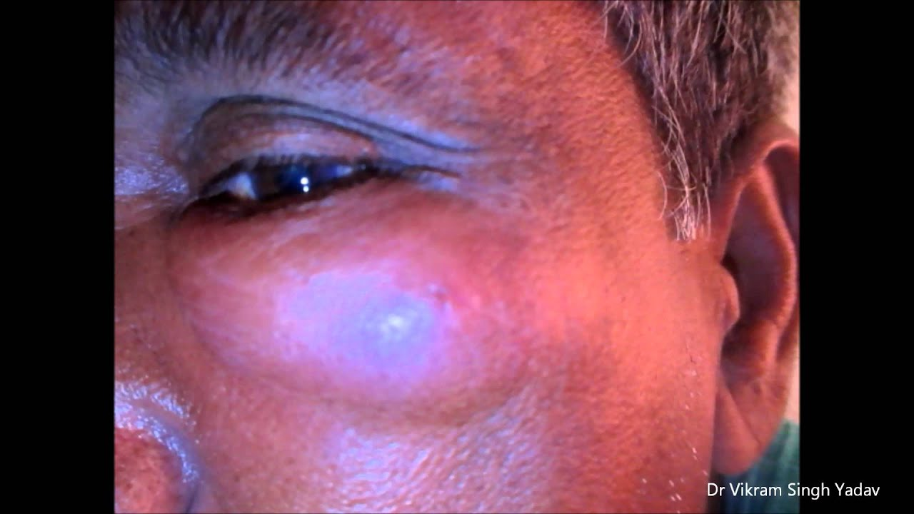 facial cyst infection