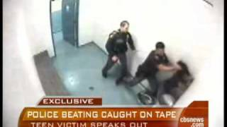 Teen Speaks Out On Cop Beating