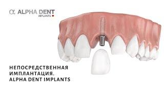 Непосредственная имплантация. Alpha Dent Implants(, 2015-08-12T13:28:36.000Z)