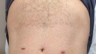 Bilateral Laparoscopic Inguinal Hernia Surgery