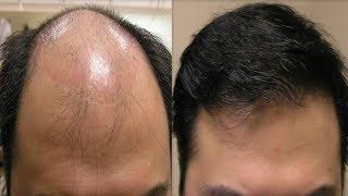 Kel Kafadan Bile Saç Çıkaran Doğal Formül - 100% Denenmiş Kesin Çözüm Önerileri