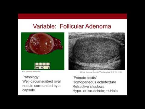 Thyroid Nodules  What We Know and What We Don't Ultrasound Video