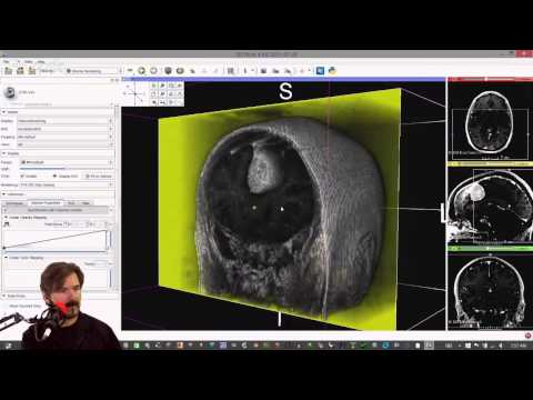 Learn to turn your CAT (CT) or MRI scan into a 3D model.
