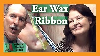 LONGEST Ear Wax Ribbon | Auburn Medical Group