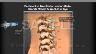 Image Guide Lumbar Medial Branch Nerve Ablation
