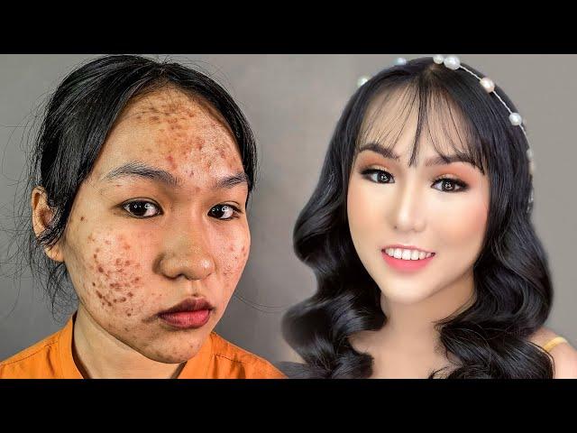 [Hùng Việt Makeup] Trang Điểm Cực Chuẩn Cho Da Mụn, Thâm / Hùng Việt Makeup