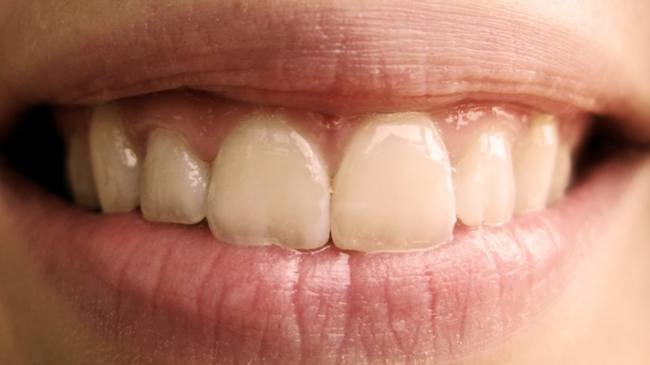 PERFECT teeth according to the GOLDEN RATIO!