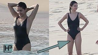 Selena Gomez -- Reveals Massive Scar On Her Thigh