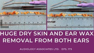 HUGE DRY SKIN AND EAR WAX REMOVAL FROM BOTH EARS - EP173