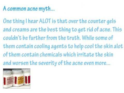Natural Cures - Natural Acne Treatment - How to Get Rid of Your Acne