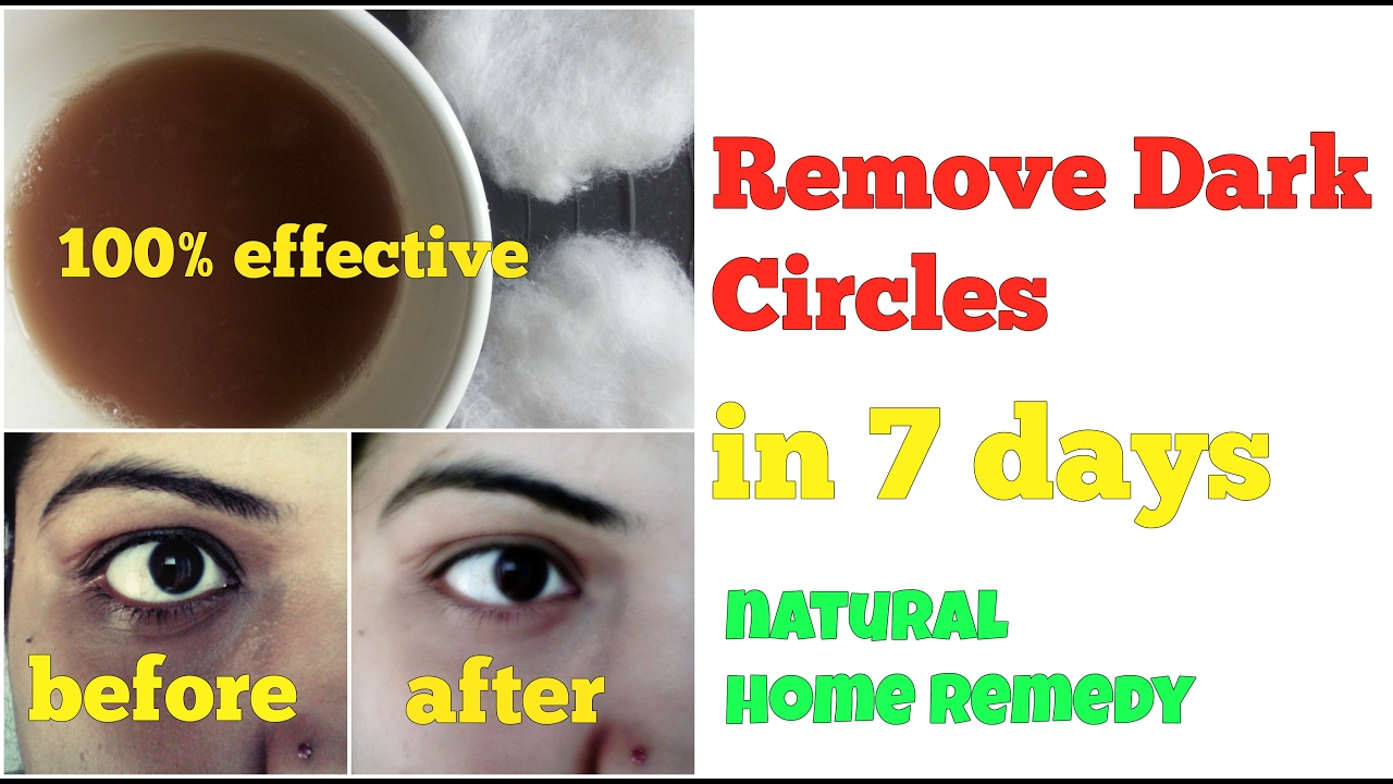 DARK CIRCLES UNDER EYES HOME REMEDY, 7 DAY TREATMENT in ...