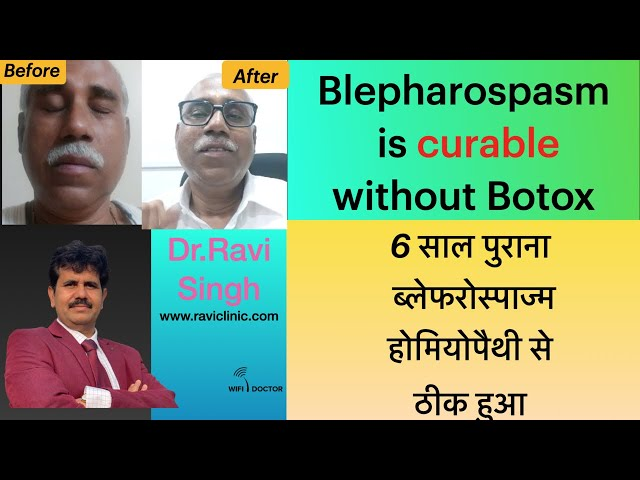Blepharospasm from 6 Years  Getting Cured   Case From Vapi Gujrat