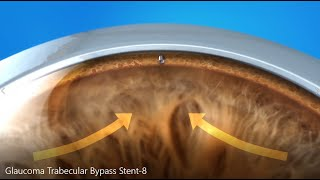 Glaucoma Treatment: Trabecular Bypass Stent Explainer Video