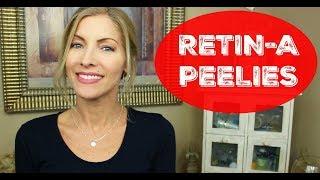Retin-A ~ Tretinoin ~ What the Peel Looks Like ~ How I Address It