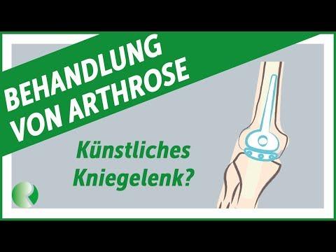 Wie schmerzt das kniegelenk, wann ist der schmerz im knie nicht mit der krankheit verbunden?