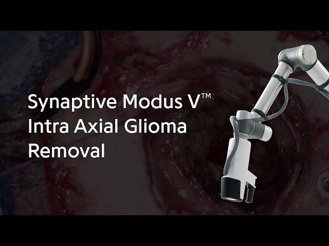 Synaptive Modus V™ Intra Axial Glioma Removal