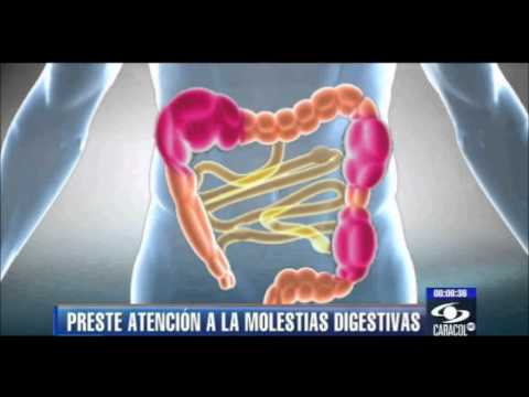 COLON INFLAMADO Y COLON IRRITABLE