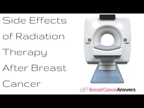 Side Effects of Radiation Therapy After Breast Cancer