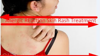 Allergic Reaction Skin Rash Treatment 2016