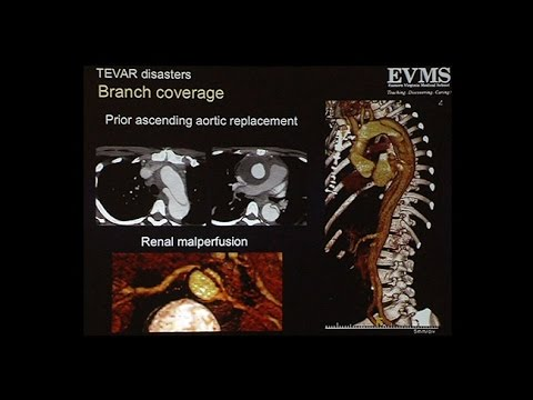 Proximal Aortic Dissection and Other Disasters After TEVAR Deployment