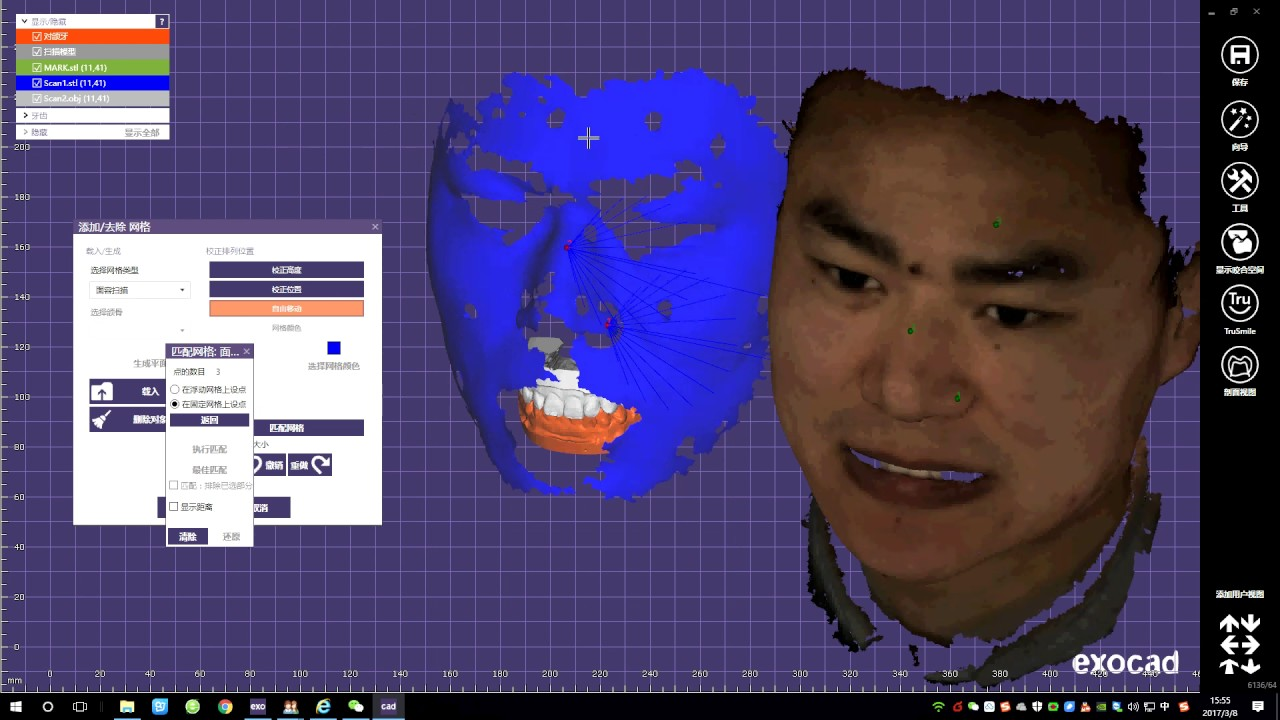 Bellas face scanner | 3d Dental CAD/CAM forum