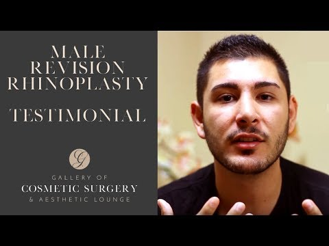 Orange County Male Revision Rhinoplasty - Dr Sadati Newport Beach