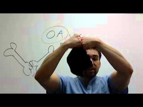 OsteoArthritis Vs. Rheumatoid Arthritis *Part 1*