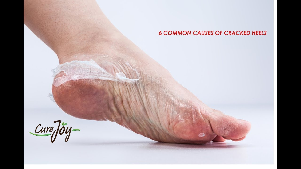 What Causes Cracked Heels advise