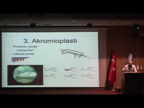 Omuz Sıkışma Sendromu / Dr. Mehmet Çetinkaya
