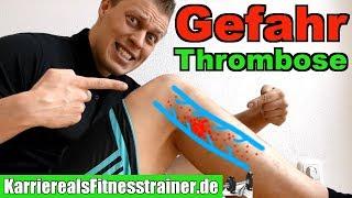 Thrombose: Symptome, Ursachen & Wie Sport machen? Alles was du wissen musst!