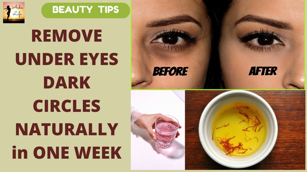 Remove Dark Circles Under Eyes Nautrally