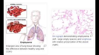 Emphysema -