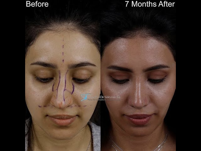 Patient testimonial video for a rhinoplasty with dr tas