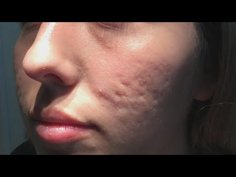does-this-new-procedure-clear-up-acne-scars?