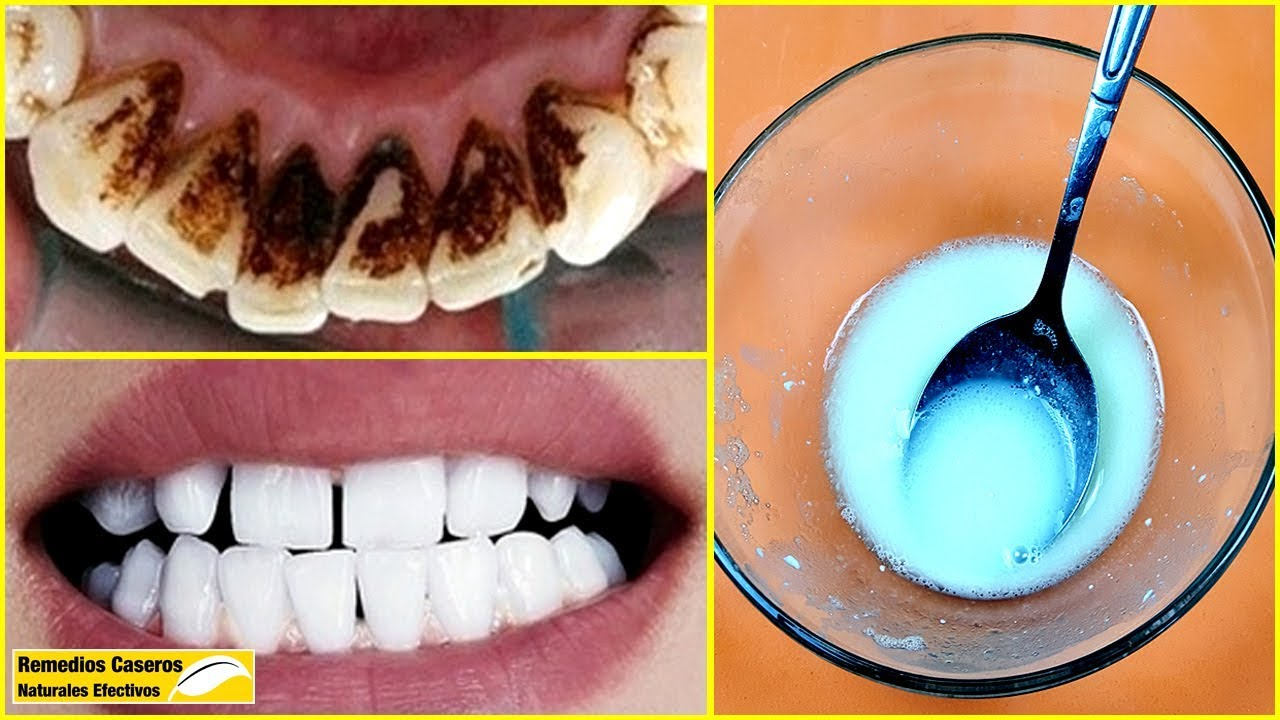 No Hay Necesidad De Ir Al Dentista Eliminar La Placa Dental Y El Sarro Solo Con Esta Mezcla Youtube