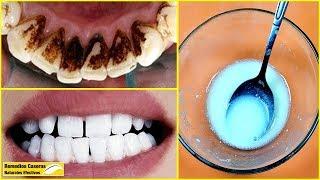 No Hay Necesidad De Ir Al Dentista: Eliminar La Placa Dental Y El Sarro Solo Con Esta Mezcla