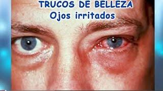 Ojos Irritados, consejos para su tratamiento