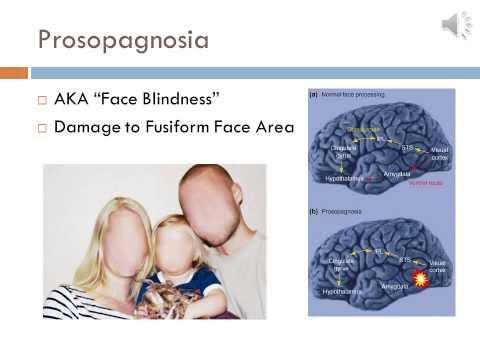 Bio 33 Project: Agnosia