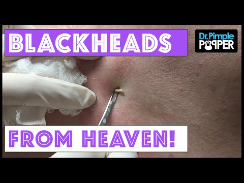 Back Blackheads from Heaven
