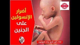 أضرار الإنسولين على الجنين