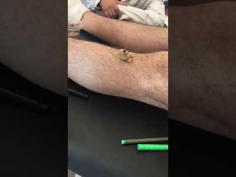 Moxibustion indirecta con jengibre