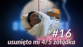 SEKIELSKI ODCHUDZANIE #16 - Wyciąłem sobie żołądek
